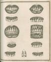 image fox, j_diseases of the teeth_plate3